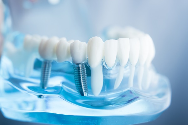 Dental Implant Restoration Parts: Post, Abutment And Replacement Tooth